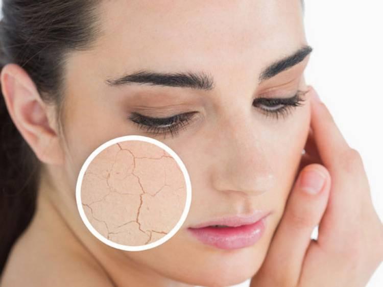 Сухая кожа: причины, признаки, особенности ухода