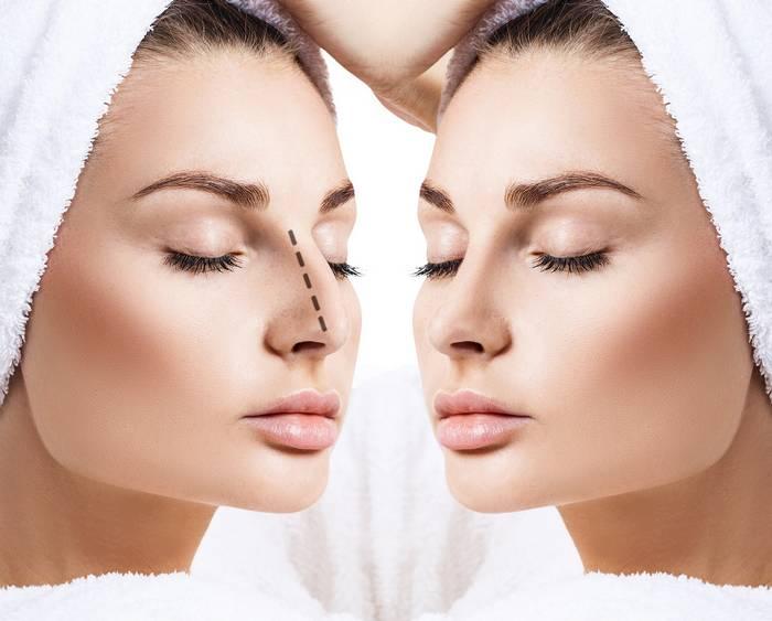 Мифы о пластике носа